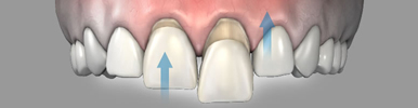 cosmetic-dentistry-veneers-md
