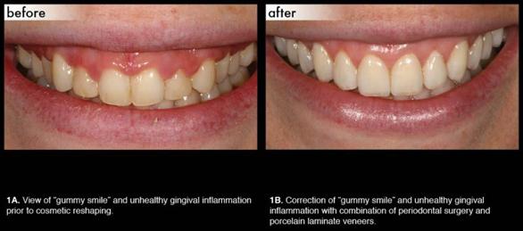 cosmetic-periodonal-1md