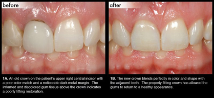 dental-crowns-nyc-1-md