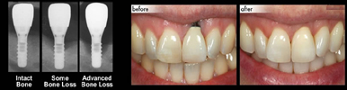 dental-implant-with-bone-loss-md