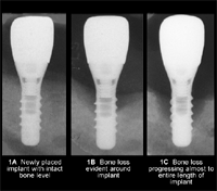 implant-bone-loss-labeled-sm
