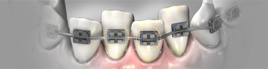 orthodontic-tooth-movement-md