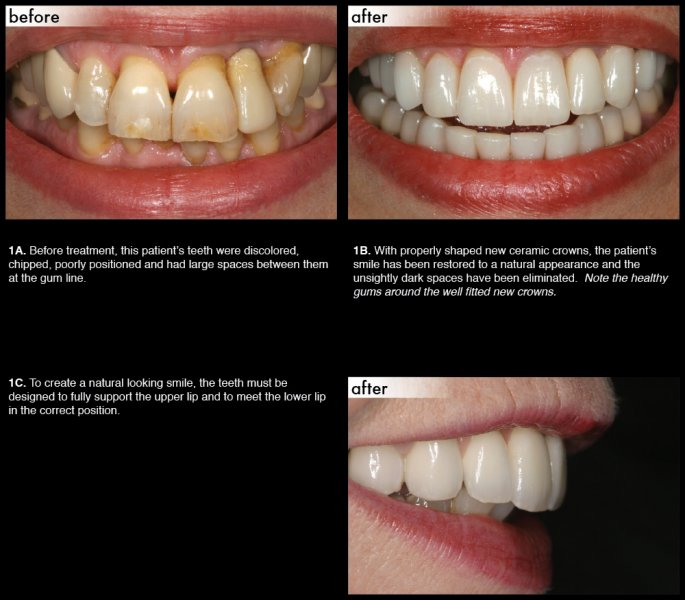 Lower Lip Discoloration