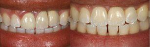 cosmetic-implant-repairs-before-1sm