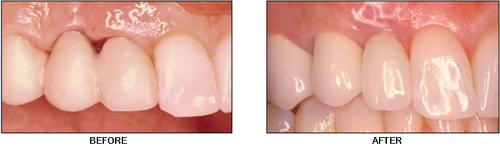gum-problems-around-implants-md