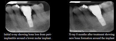 implant-bone-loss-sm