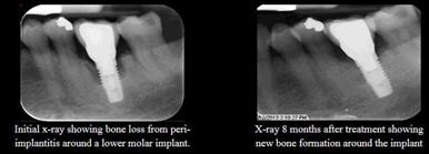 implant-bone-loss-sm